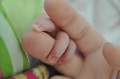 اسباب الولادة القيصرية ونصائح للحامل بعد العملية Caesarean