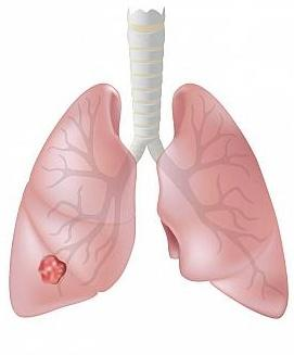 lung-cancer