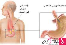 Photo of ارتجاع المرىء .. الأسباب والأعراض وطرق علاجه