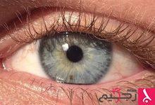 Photo of بالفيديو: جراحة ليزرية تحول عينيك من البني للأزرق في 20 ثانية