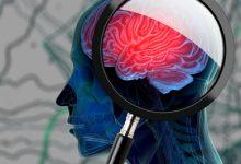 Photo of دراسة حديثة تُشير إلى عوامل خطر جديدة للإصابة بالخرف