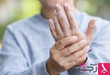 Photo of دراسة حديثة: التهاب المفاصل يصيب الشباب بمعدلات أكبر مما كان معتقداً سابقاً