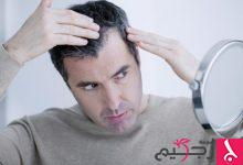 Photo of علاج تساقط الشعر عند الرجال