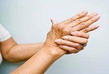 Photo of أسباب تصلب الجلد