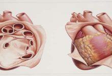 Photo of أعراض التهاب غشاء التامور