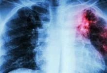 Photo of أعراض مرض السل