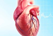 Photo of أمراض القلب والشرايين الأكثر شيوعًا