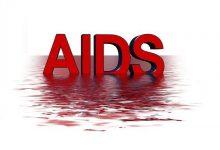 Photo of مرض الإيدز وحقائق مهمه عنه