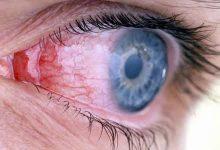 Photo of التهاب العين الفيروسي وعلاجه