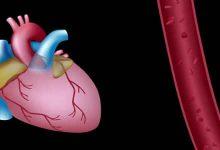 Photo of طرق علاج احتشاء عضلة القلب