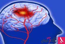 Photo of طرق علاج نزيف الدماغ