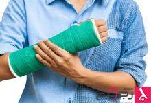 Photo of كيفية علاج كسور العظام