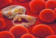 Photo of ما هو مرض الملاريا