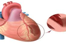 Photo of معلومات عن احتشاء عضلة القلب