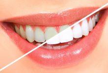 Photo of 4 وصفات لمحاربة اصفرار الأسنان