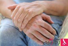Photo of علاج البرص
