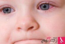 Photo of علاج التهابات وحساسية الأنف