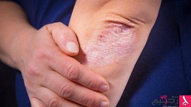 Photo of كيف يمكن تخفيف حكة الجلد في الشتاء؟