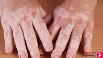 Photo of مرض البرص