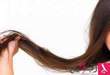 Photo of أفضل 6 طرق لعلاج تساقط الشعر