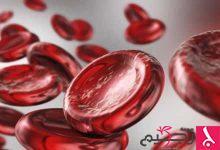 Photo of أعراض أنيميا الفول