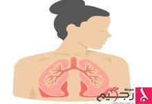 Photo of أعراض تليف الرئة