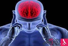 Photo of طرق علاج ضعف الأعصاب