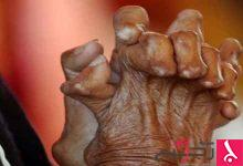 Photo of طرق علاج مرض الجذام