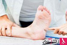 Photo of علاج التهاب الأعصاب الطرفية لمرضى السكري