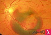 Photo of علاج تلف شبكية العين
