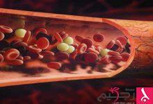 Photo of علاج قصور الدورة الدموية