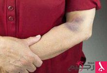 Photo of علاج نقص الصفائح الدموية