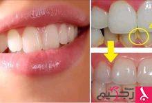 Photo of معلومات عن تبييض الأسنان في المنزل