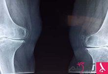 Photo of معلومات عن تطويل العظام