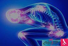 Photo of معلومات عن تليف العضلات