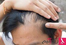 وسائل علاج انسداد مسام فروة الرأس
