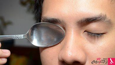 Photo of علاج انتفاخ تحت العين