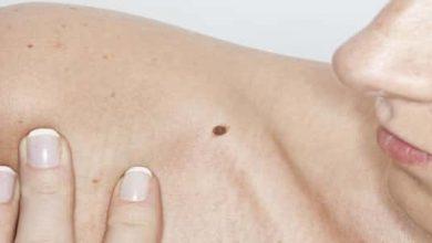 Photo of سرطان الجلد الميلانوما (التصبغي)