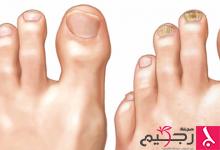 Photo of فطريات الأظافر