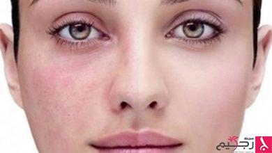 Photo of الوردية مرض جلدي.. يصيب العين أيضاً