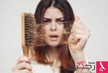Photo of تساقط الشعر.. متى يستدعي القلق؟