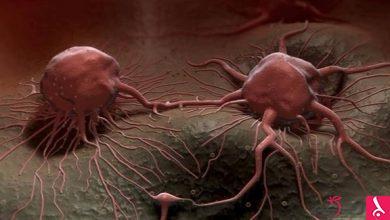 Photo of دراسة: فيروس معزز للمناعة يحمل أملاً في علاج سرطان الدماغ