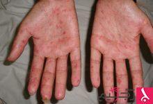 Photo of دراسة حديثة: زراعة الخلايا الجذعية تمنح أملاً جديداً في علاج تصلب الجلد