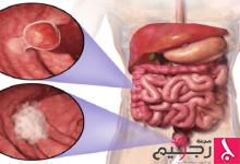 "Photo of ""كوكتيل"" لعلاج سرطاني القولون والمستقيم"