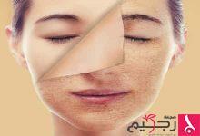 Photo of أسباب اصفرار الوجه