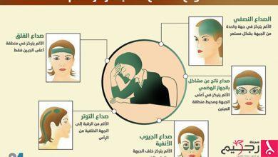 Photo of إنفوغراف24: 5 أنواع للصداع حسب مكان الألم