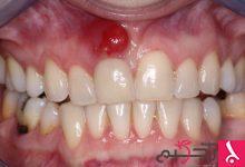 Photo of علاج خراج الأسنان