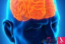 Photo of أعراض سرطان المخ