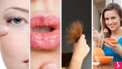 Photo of 4 مشكلات جمالية تكشف حالتك الصحية