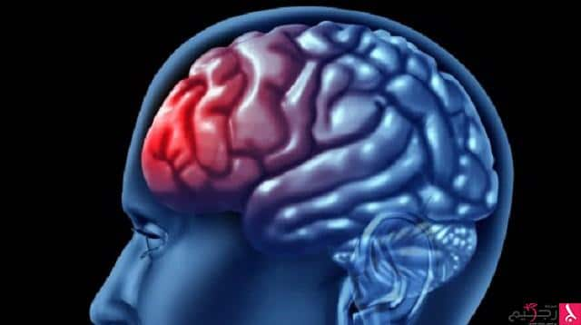 الدماغ 254